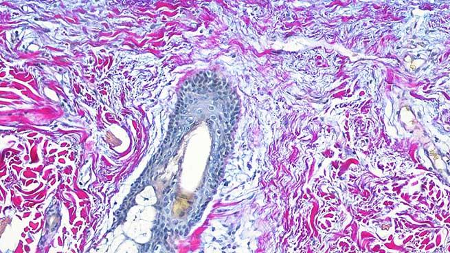 Human skin (Herovici staining)