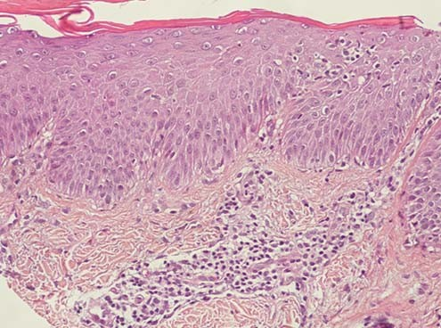 atopic dermatitis