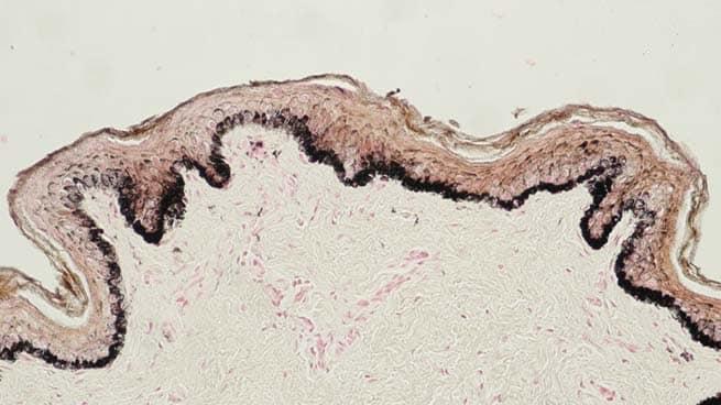 Human skin (Fontana-Masson staining)