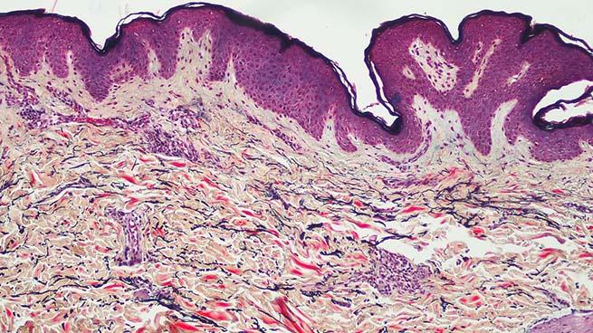 Human skin (Movat-Pentachrome staining)