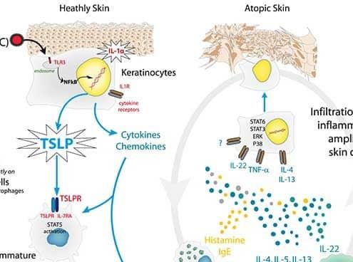 Inflammatory-loop-