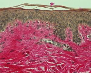 Human skin (Van Gieson staining)