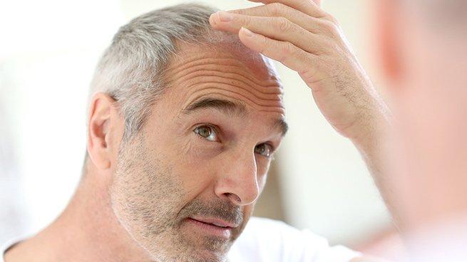 Tests in vitro et ex vivo: Cheveux et régeneration capillaire