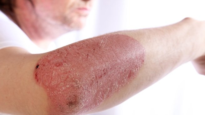Tests in vitro et ex vivo: psoriasis