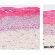 skin photoaging irradiations