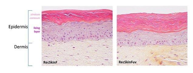skin photoaging irradiations