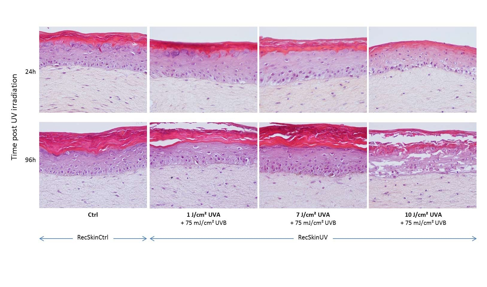 IHC skin photoaging irradiations