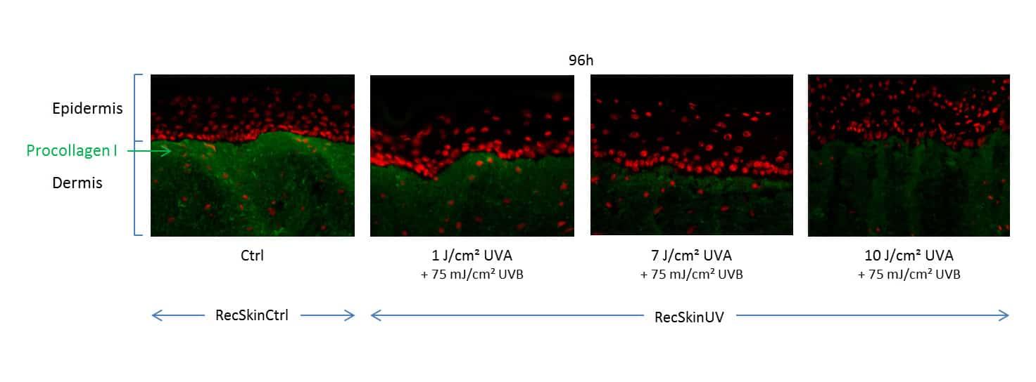 Photo irradiations skin photoaging