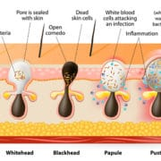 sebaceous gland