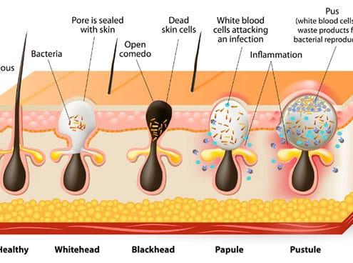 Various forms of acne vulgaris