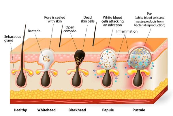Acne Vulgaris Origins Symptoms And Current Treatments