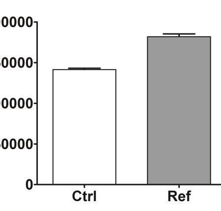 Total lipid neosynthesis