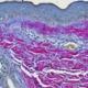Herovici staining (x40)