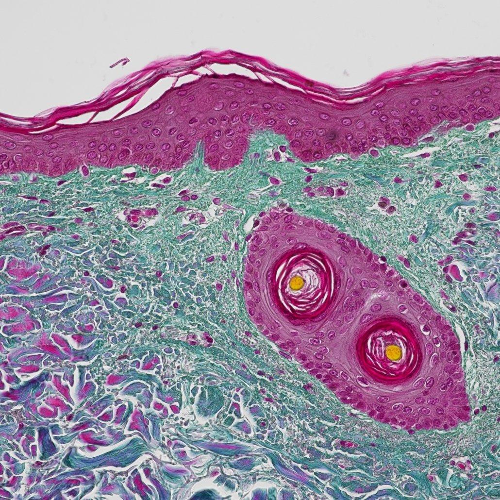 Human skin (Masson Trichrome staining)