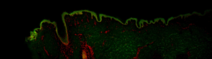 Scanning de lame - Coupe d'explant de peau humaine marquée en fluorescence - image entière