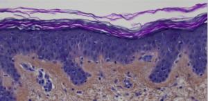 Scanning de lame - Coupe d'explant de peau humaine colorée (HES) - image zoomée