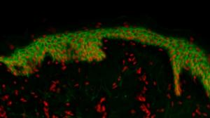 Scanning de lame - Coupe d'explant de peau humaine marquée en fluorescence - image zoomée