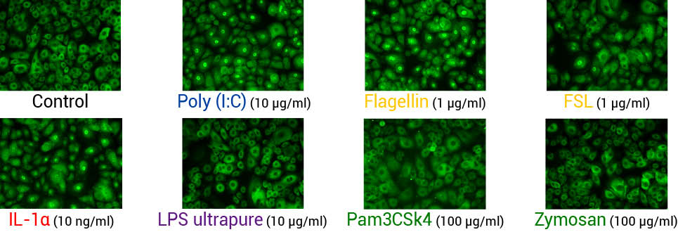 Analysis of NF-kB translocation in keratinocytes stimulated with IL-1α or TLR agonists