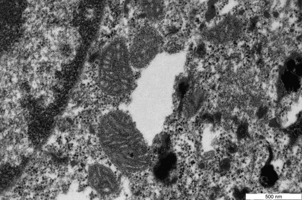Mitochondria in melanized RHE_TEM