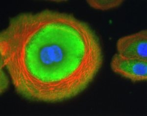 Labeling of NHEK (Myosin in green, actin in red, nuclei in blue)