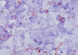 Skin Dermis-Fibulin3-IHC