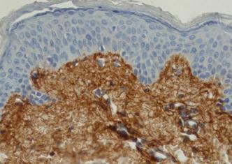 Skin-PHN-Collagen6-IHC