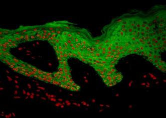 Skin-PHN-Cytokeratin1-IF