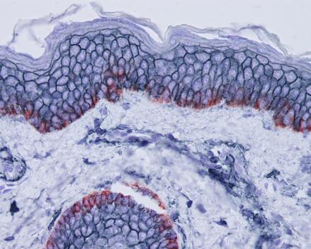 Skin-CD44 blue grey-KRT15 red-IHC