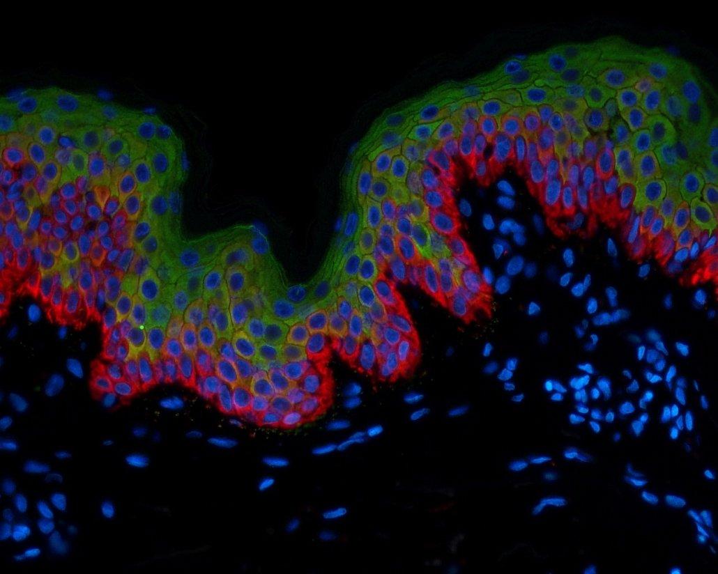 Skin-KRT10 green-KRT5 in red-Nuclei blue-IF