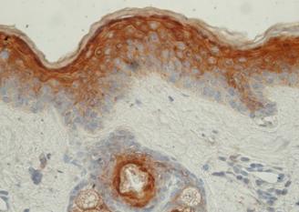 Skin ear-caspase14-IHC